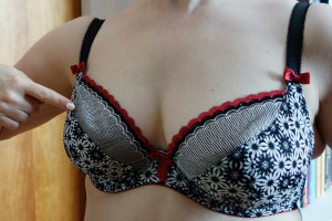 An example of a poorly fitting bra